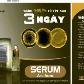 serum trị mụn giá sỉ